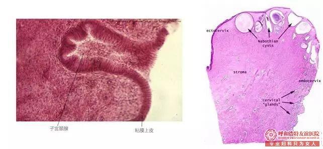 """呼和浩特宫颈腺体囊肿——宫颈的""""青春痘"""""""
